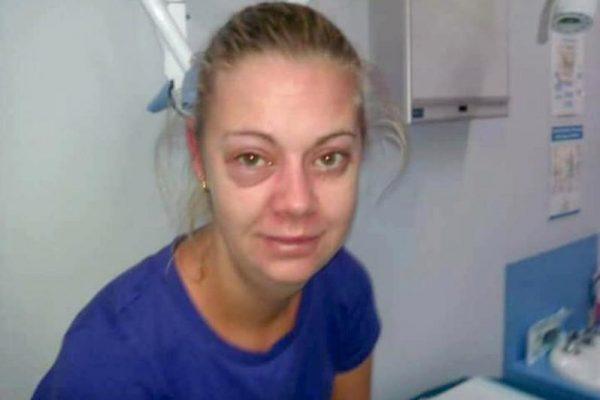 Cum arată o femeie după ce a renunțat la alcool. Obișnuia să bea 12 beri și un litru de vodkă în fiecare zi